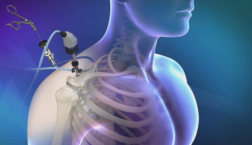 Lesioni della cuffia dei rotatori  riparazione open vs artroscopia –  Vincenzo Guarrella e702c3beb0b6
